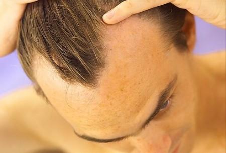 Гнездная алопеция: выпадение волос – не приговор