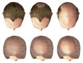 Гнездная алопеция у женщин, мужчин и детей: причины, лечение